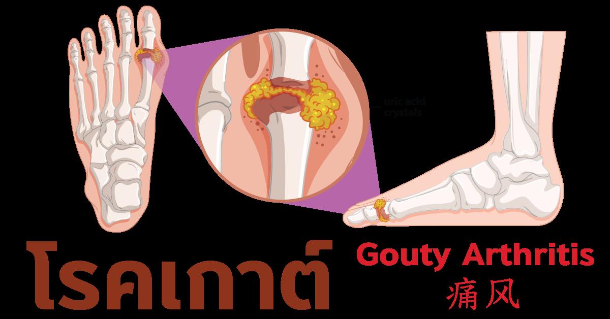 โรคเกาต์ Gouty Arthritis  痛风
