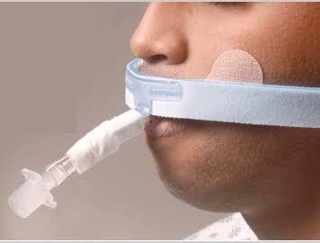 Jia ICU Endotracheal tube holder
