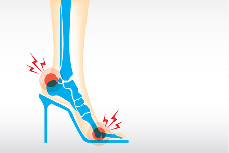 3 วิธีการเลือกรองเท้า สุขภาพให้เหมาะกับลักษณะเท้าของแต่ละคน