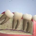 ถอนฟันคุดหรือผ่าฟันคุด
