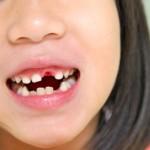 รักษาฟันเด็ก