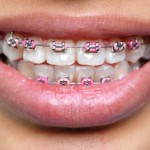 จัดฟัน