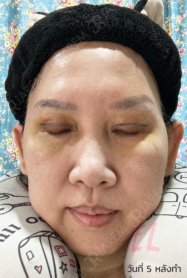 ศัลยกรรมตา