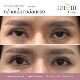 กล้ามเนื้อตาอ่อนแรง ตาปรือ_10