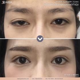 กล้ามเนื้อตาอ่อนแรง ตาปรือ_05