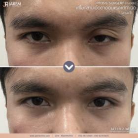 กล้ามเนื้อตาอ่อนแรง ตาปรือ_09