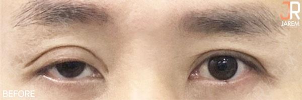 กล้ามเนื้อตาอ่อนแรงแต่กำเนิด