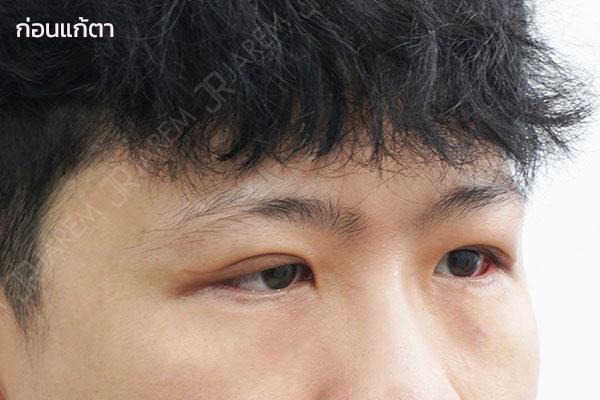 แก้ตาที่ไหนดี