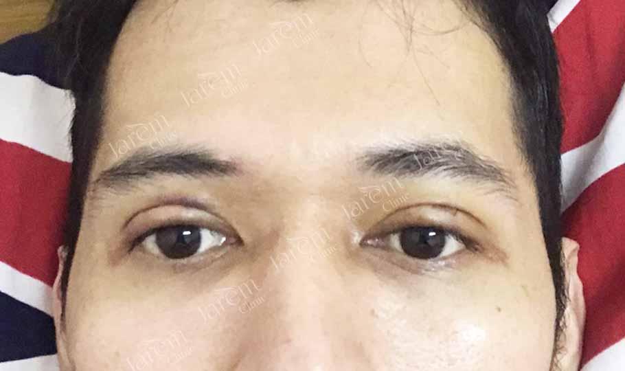 แก้ไขกล้ามเนื้อตาอ่อนแรง2