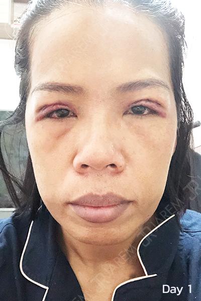 โรคกล้ามเนื้อตาอ่อนแรง