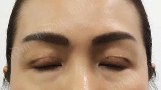 กล้ามเนื้อตาอ่อนแรงในผู้สูงวัย5