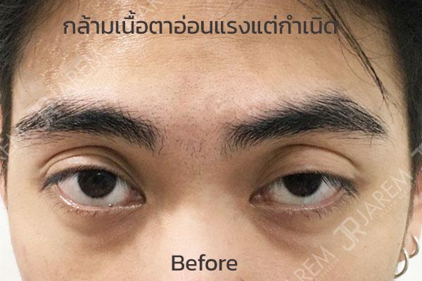 กล้ามเนื้อตาอ่อนแรง แต่กำเนิด