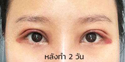 กล้ามเนื้อตาอ่อนแรง