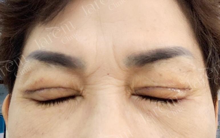 หลังผ่าตัดกล้ามเนื้อตา4