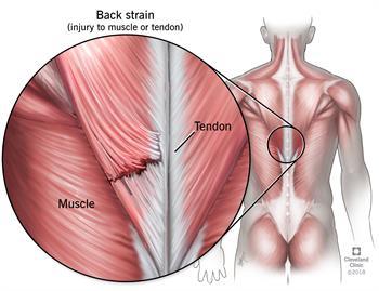 กล้ามเนื้อฉีก (Muscle strain)