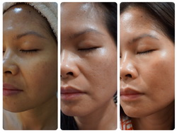 The Scarlett Clinic Siam Paragon Lift Up Face