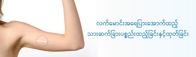 လက်မောင်းအရေပြားအောက်ထည့် သားဆက်ခြားပစ္စည်းထည့်ခြင်းနှင့်ထုတ်ခြင်း