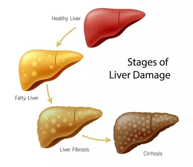 4 causes leading to cirrhosis That there is still a way to prevent and reduce violence
