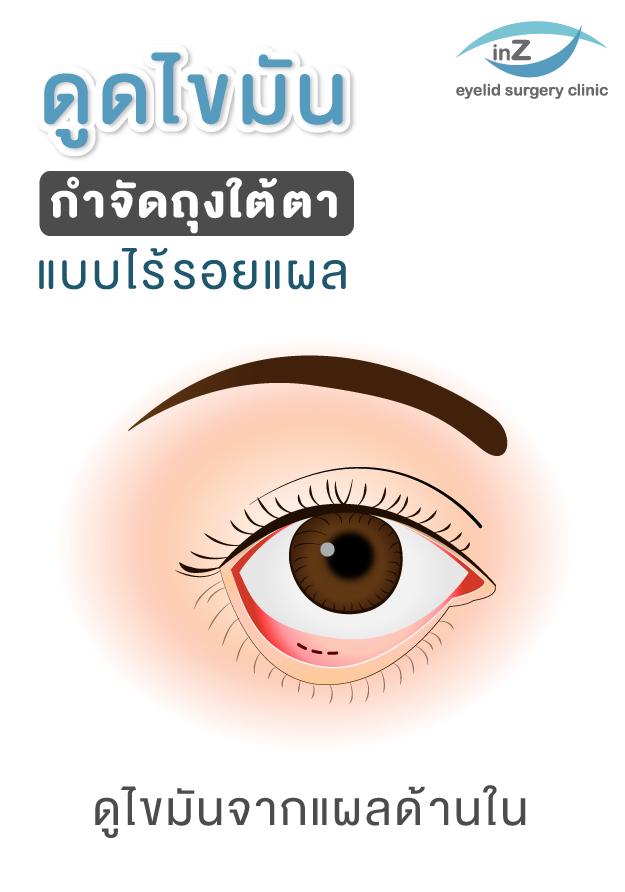 ตัวอย่างการดูดไขมันกำจัดถุงใต้ตา