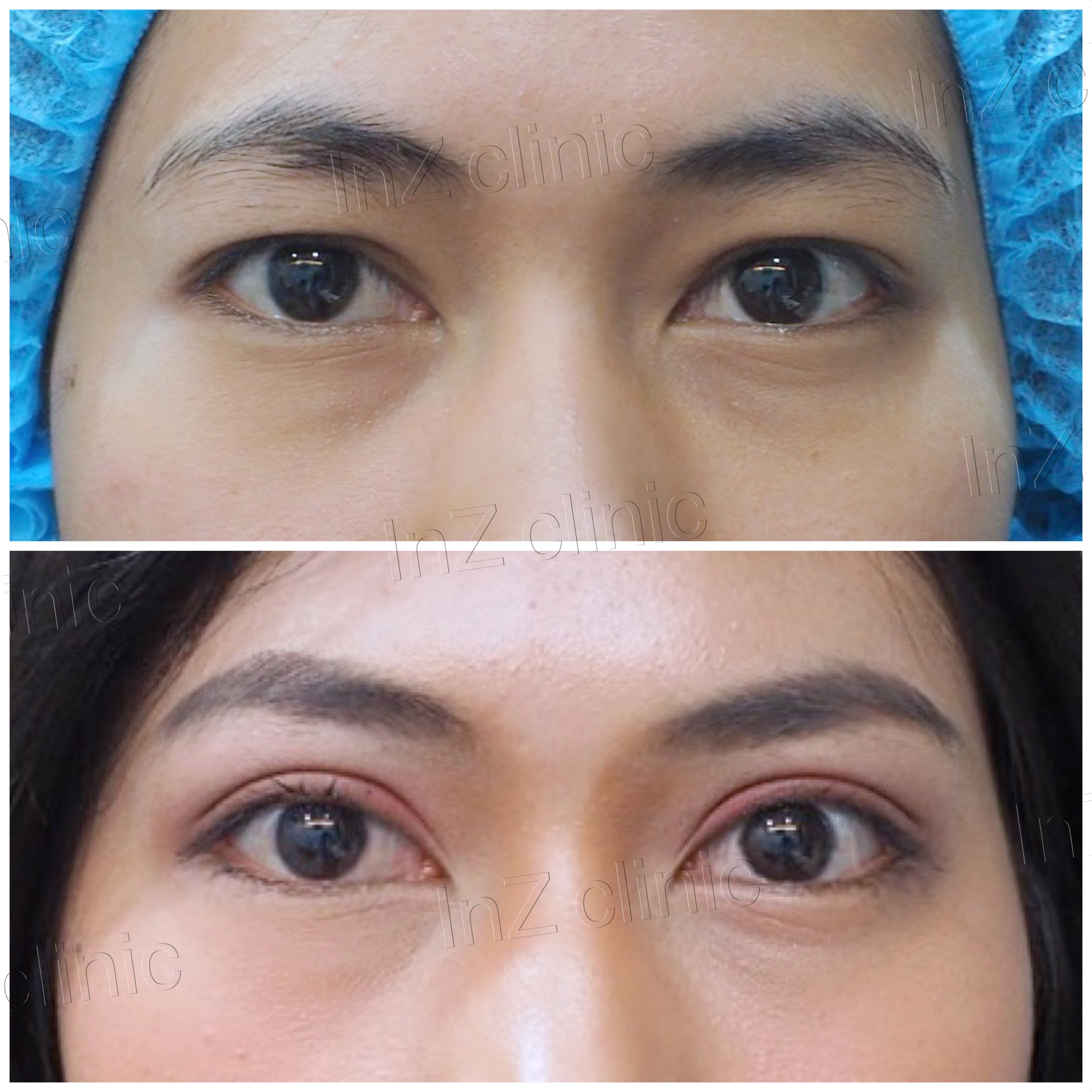 Current methods of double eyelid surgery, pros & cons - Inz