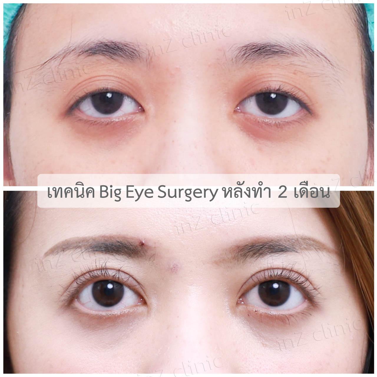 ทำตาแก้ไขปัญหากล้ามเนื้อตาอ่อนแรง