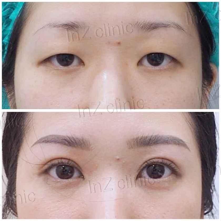 พฤติกรรมที่ทำให้เกิดกล้ามเนื้อตาอ่อนแรง_09