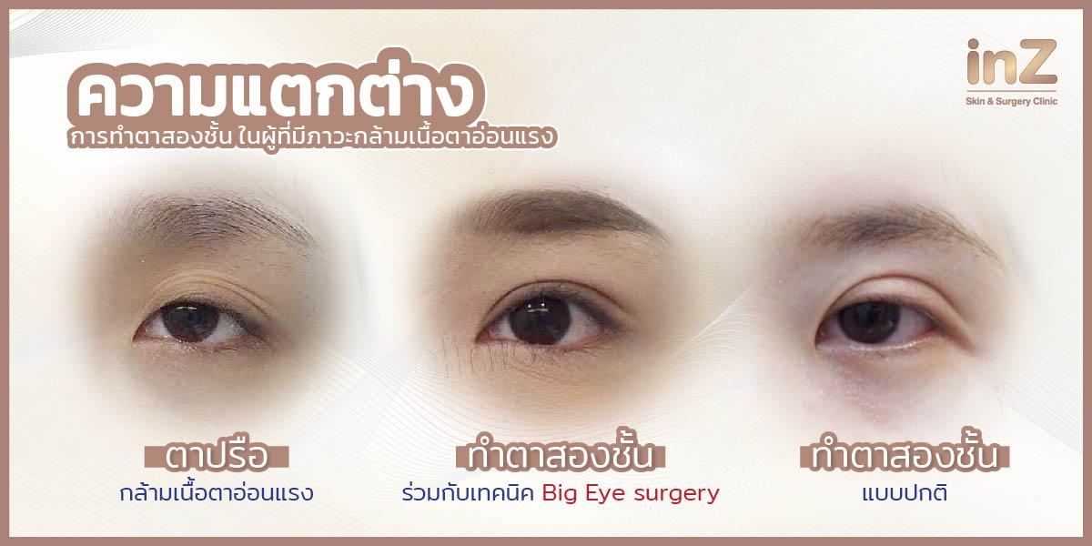 ตัวอย่างการทำตาสองชั้นและแก้ไขกล้ามเนื้อตาอ่อนแรง