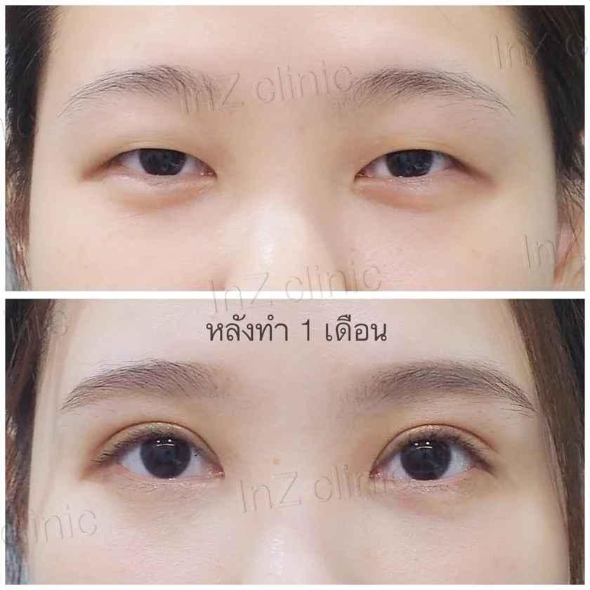ภาพรีวิวทำตาสองชั้น เทคนิค Big eye surgery 01