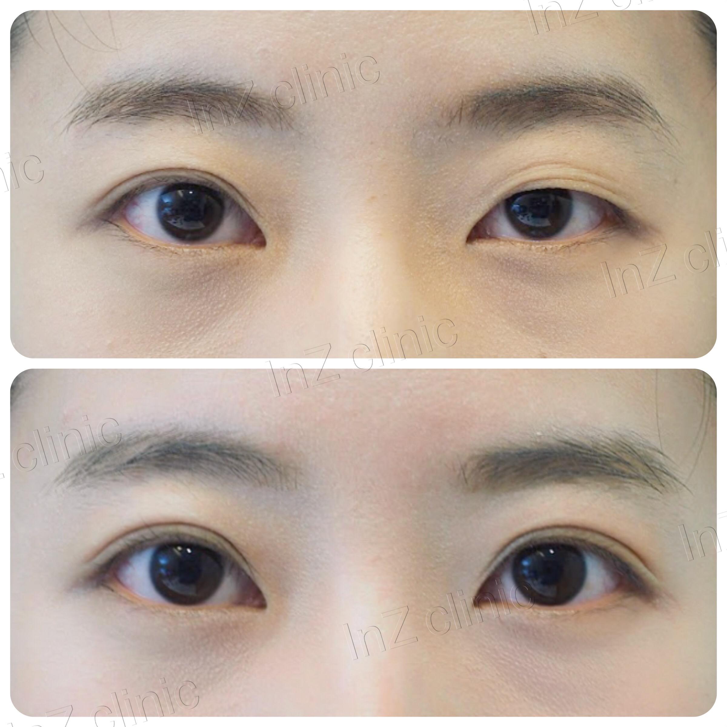 ตาไม่เท่ากัน แก้ไขโดยเย็บชั้นตาใหม่ โดยแผลผ่าตัดขนาดเล็ก 5mm
