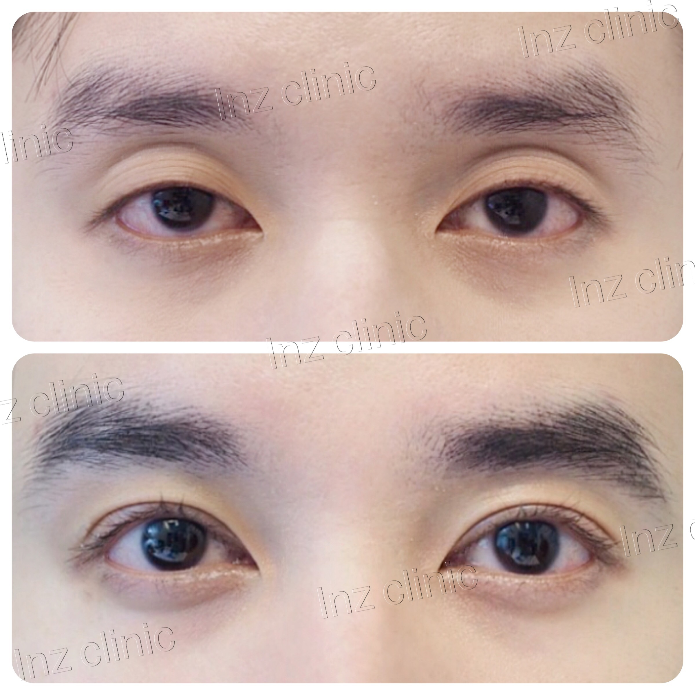 Current methods of double eyelid surgery, pros & cons - Inz-clinic