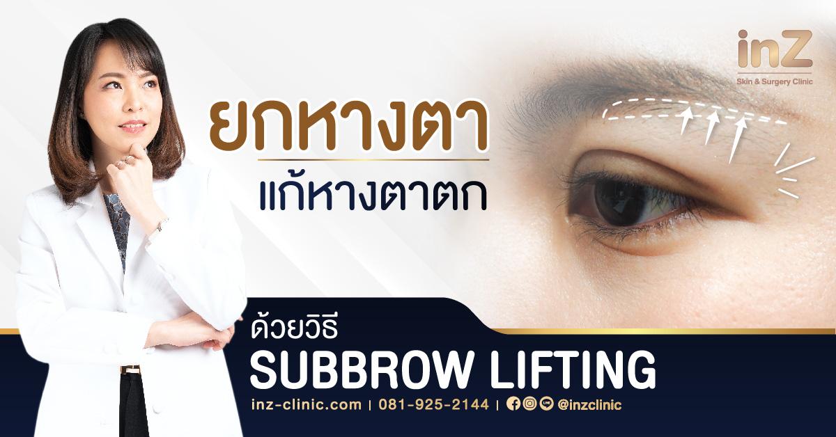 แก้หางตาตก โดย subbrow lifting
