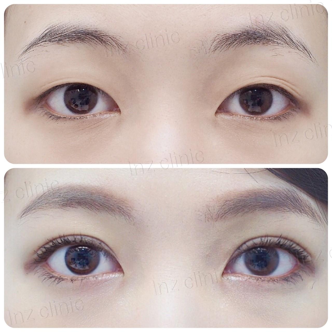 เทคนิคศัลยกรรมตาสองชั้นแผลเล็ก_หมอหลิน_02