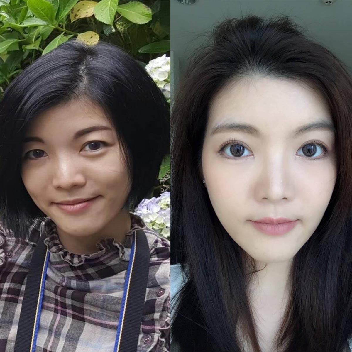 Before-After ทำตาสองชั้น เทคนิค Big eye surgery