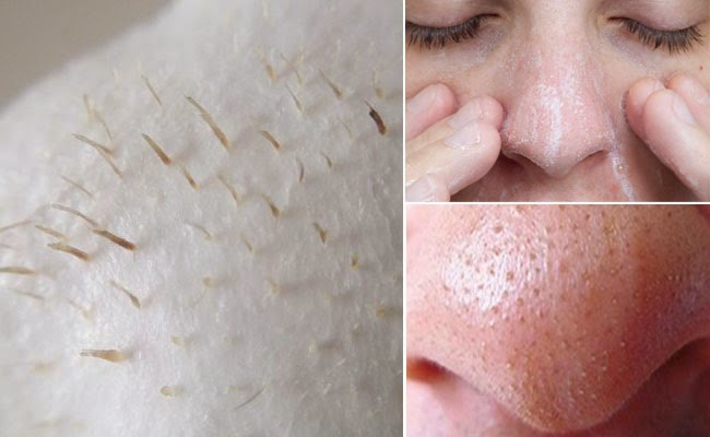Klear Nose Cream ครีมดูแลสิวเสี้ยน สิวอุดตันที่จมูก  ครีมดูแลสิวเสี้ยน ลดสิวหัวดำ ลอกสิวเสี้ยน กระชับรูขุมขน ทำความสะอาดรูขุมขน 10 g