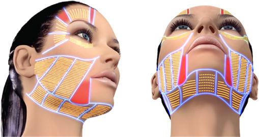 Ultra HIFU 3D Program ยกกระชับ ปรับรูปหน้า กระตุ้นคอลลาเจน