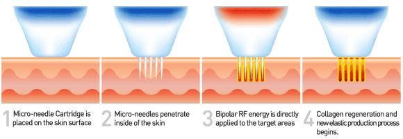 Fractional Radio Frequency RFคืออะไร มีกี่ชนิด แตกต่างกันอย่างไร ?