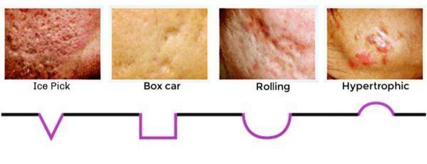 การดูแลหลุมสิวลึกด้วยการแต้ม TCA CROSS (TCA Chemical Reconstruction of Skin Scars)