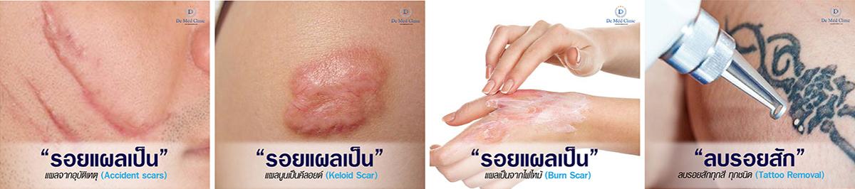 "DeMed Clinic By Dr.Suparuj""รอยแผลเป็น""  แผลจากศัลยกรรม (Surgery scars)@demedclinicwww.demedclinic.com063-959-4392 DeMed Clinic By Dr.Suparuj""รอยแผลเป็น""  แผลจากสิวอักเสบ (Acne Scars)@demedclinicwww.demedclinic.com063-959-4392 DeMed Clinic By Dr.Suparuj""รอยแผลเป็น""  แผลจากหลุมสิว (Acne Scars)@demedclinicwww.demedclinic.com063-959-4392 ""รอยแผลเป็น""  แผลจากผ่าตัด (Surgical Scar)DeMed Clinic By Dr.Suparuj@demedclinicwww.demedclinic.com063-959-4392 หมดปัญหาผิวไม่เรียบ ไม่สวยจากรอยแผลเป็น หลุมสิว หรือรอยแผลทุกชนิด ที่ทำให้ผิวเป็นรอยรักษาให้ดีขึ้นได้ด้วยเทคโนโลยีใหม่ล่าสุดด้านเทคนิคพิเศษเฉพาะที่ DeMed ClinicPicosecond Laserรักษารอยแผลเป็นด้วยนวัตกรรมDeMed Clinic By Dr.Suparuj@demedclinicwww.demedclinic.com063-959-4392 "" รักษาแผลเป็น สามารถรักษาให้จางลงได้และผิวเรียบเนียนขึ้นได้ครับ แต่แผลเป็นทุกชนิดจะหายได้หรือเนียนเรียบหายเป็นผิวปกติ หรือหายได้ 100% นั้น ขึ้นอยู่กับผลลัพธ์ที่อาจแตกต่างกันไปแล้วแต่บุคคล ซึ่งการรักษาแผลเป็นด้วย Picosecond Laser หรือโปรแกรมพิเศษนั้น รักษายิ่งเร็วยิ่งได้ผลดีครับ "" หมอรุจ By DeMed Clinic"