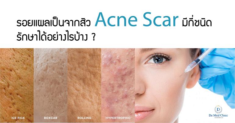 รอยแผลเป็นจากสิว Acne Scar มีกี่ชนิด รักษาได้อย่างไรบ้าง ?