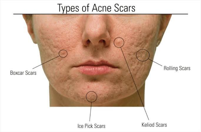 Rolling Acne Scars รอยแผลเป็นหลุมจากสิวที่มีลักษณะกว้าง และตื้น คล้ายกระทะ