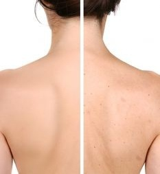 Body Acne Treatment Program by De Med Clinic โปรแกรมดูแลรักษาสิวที่ชำตัวและหลัง