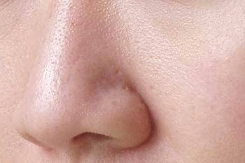 Laser Rejuvenation Program ลดริ้วรอย ยกกระชับ หน้าใส รูขุมขนดูเล็กลง