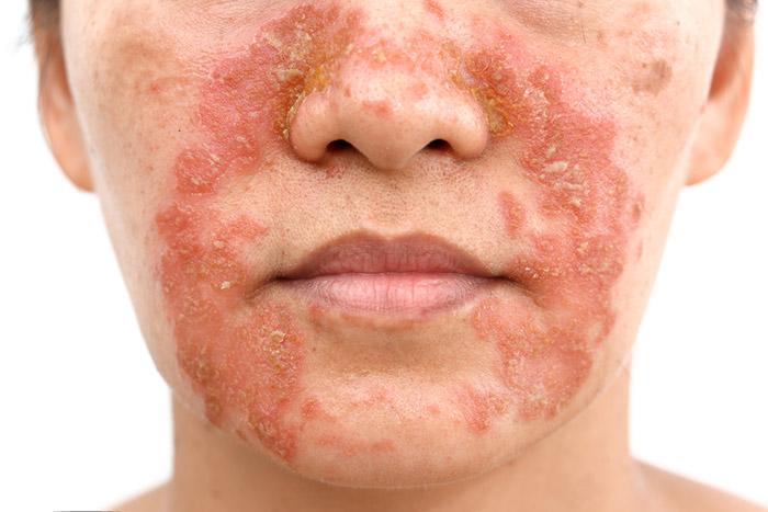 โรคผิวหนังอักเสบเซ็บเดิร์ม Seborrheic Dermatitis หรือโรคผื่นแพ้ต่อมไขมัน คืออะไร รักษาได้อย่างไร