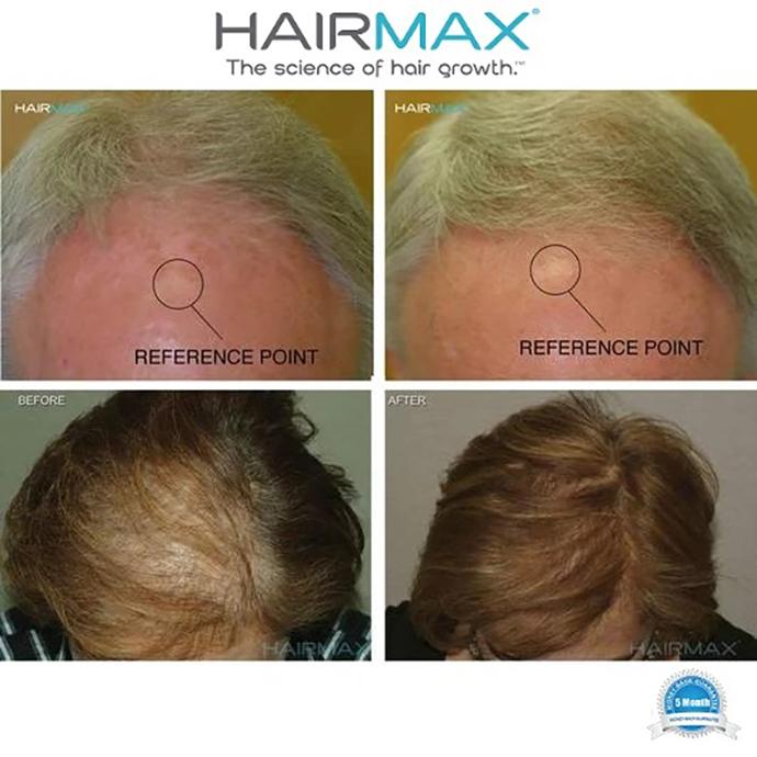 HairMax Ultima 9 Classic LaserComb แบบหวี 9เลเซอร์  ปกติ 18,900 บาท พิเศษราคา 15,900 บาท ใช้เวลาในการดูแล เพียง 11 นาที ต่อครั้ง 3 ครั้งต่อสัปดาห์ **พิเศษเฉพาะที่ DeMed Clinic เท่านั้น