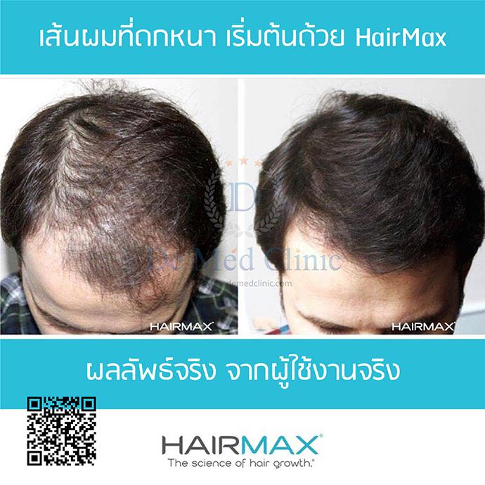 HairMax LaserBand 82แบบที่ผมคาดผม 84 เลเซอร์   ราคา ปกติ 49,900 บาท พิเศษราคา 46,900 บาท ใช้เวลาในรักษาที่รวดเร็ว เพียงแค่ 90 วินาทีต่อครั้ง 3 ครั้งต่อสัปดาห์