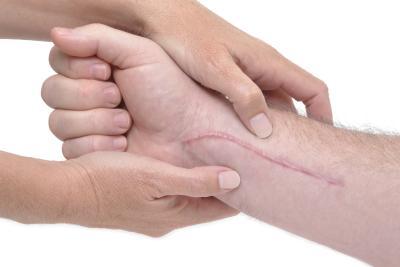 Advanced Keloid Scar Treatment by De Med Clinic