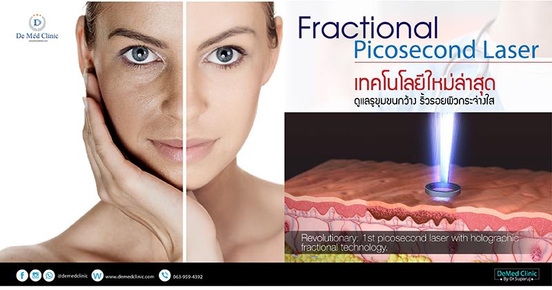 Fractional Picosecond Laser เทคโนโลยีใหม่ล่าสุด ดูแลรูขุมขนกว้าง ริ้วรอยผิวกระจ่างใส