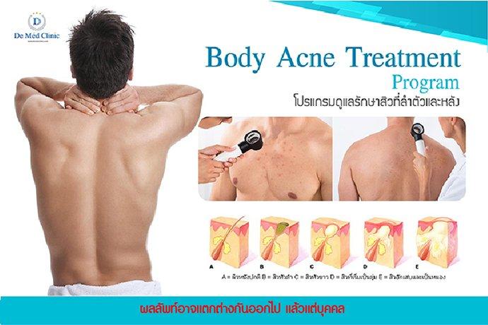 Body Acne Treatment Program โปรแกรมดูแลรักษาสิวที่ลำตัวและหลัง