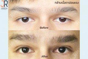 รักษากล้ามเนื้อตาอ่อนแรงโดยจักษุแพทย์ ต้องที่จาเรมคลินิก