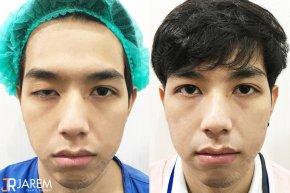 อาการที่คุณยังไม่รู้เกี่ยวกับกล้ามเนื้อตาอ่อนแรงแต่กำเนิด